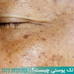 Hyperpigmentation & Dark Spots Treatments